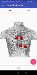 Screenshot der Analyse App zeigt die Aufsatzpunkte des elektronischen Stethoskops Sanascope zum Abhören der Herztöne