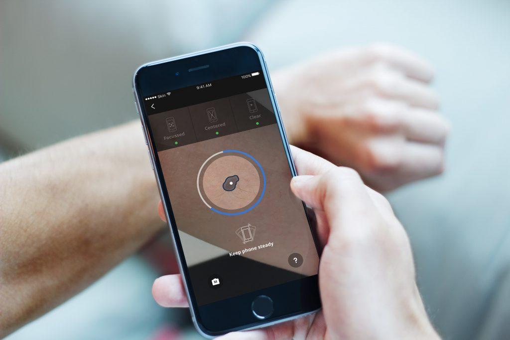 Hautkrebsfrüherkennung mit der App SkinVision