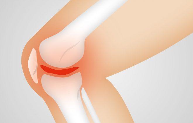Illustration Knigelenk Arthrose Entzündung